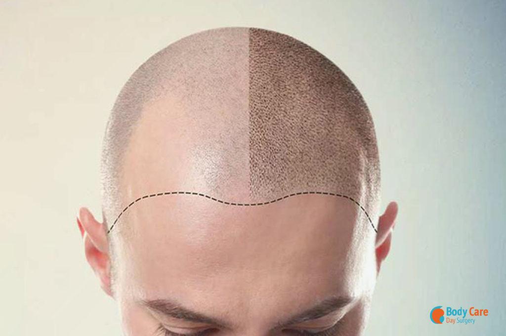Trapianto capelli con tecnica FUE - Body Care Day Surgery